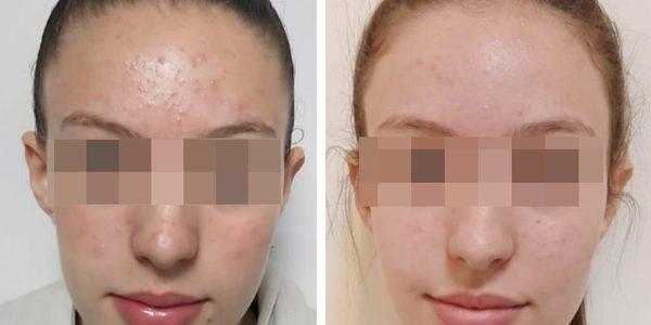Acne & oily treatment