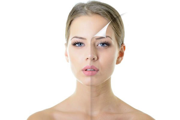 5 facts about the HL PROFESSIONAL PEELS
