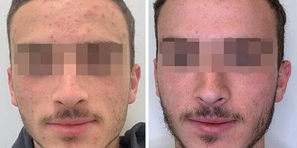 Comprehensive acne treatment